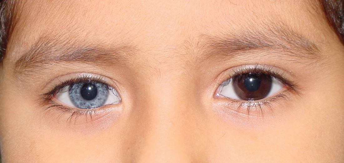 heterocromia_completa