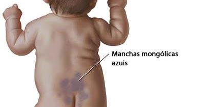 mancha mongol 0a8370_c3af2d2347a14dc5901c6df8d1f8050a-mv2